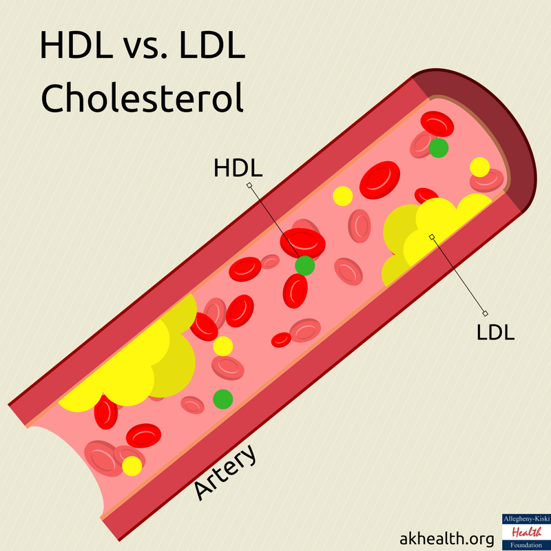 HDL vs. LDL Cholesterol